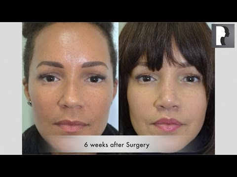Watch Video: Before and After - Ethnic Rhinoplasty & Lip Lift Review & Testimonial