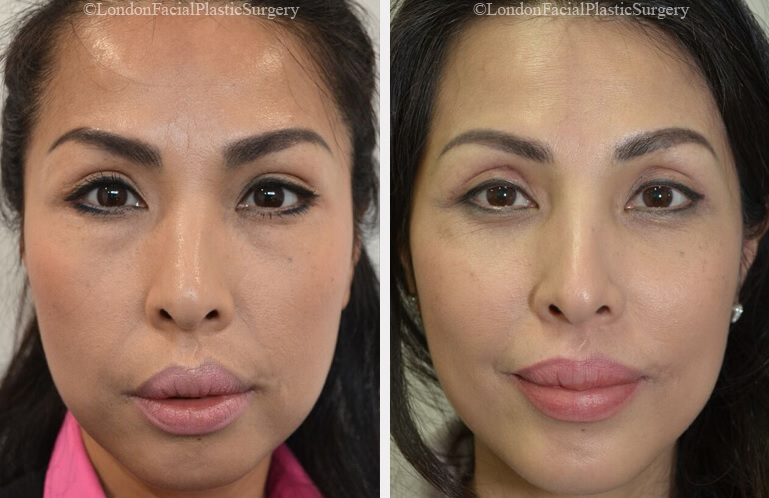 Asian woman face, before and after treatment, front view