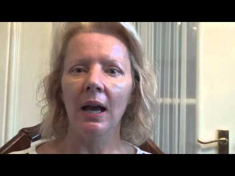 Watch Video: Blepharoplasty Eyelid Lift Diary Day 11 After Surgery