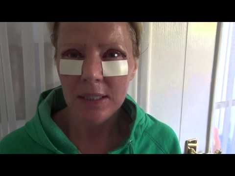 Watch Video: Blepharoplasty Eyelid Lift Diary Day 1 After Surgery
