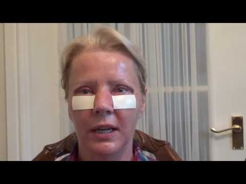 Watch Video: Blepharoplasty Eyelid Lift Diary Day 2 After Surgery