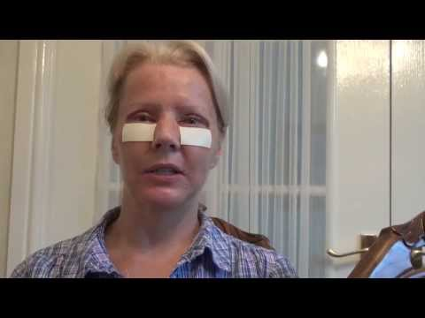 Watch Video: Blepharoplasty Eyelid Lift Diary Day 3 After Surgery