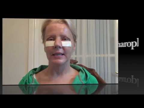 Watch Video: Blepharoplasty Eyelid Lift Diary Day 4 After Surgery