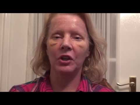 Watch Video: Blepharoplasty Eyelid Lift Diary Day 7 After Surgery
