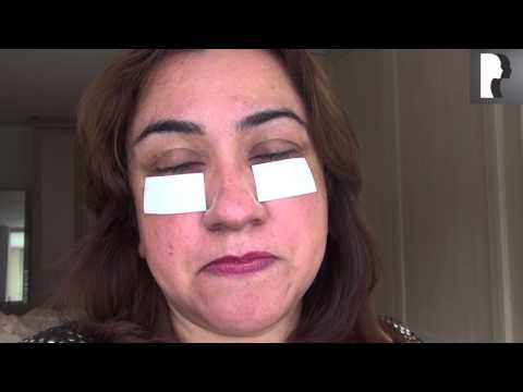 Watch Video: Blepharoplasty Video Diary: Day 1 After Surgery & Recovery Progress
