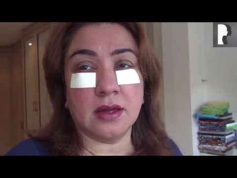 Watch Video: Blepharoplasty Video Diary: Day 2 After Surgery & Recovery Progress