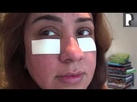 Watch Video: Blepharoplasty Video Diary: Day 3 After Eyelid Surgery & Recovery Process