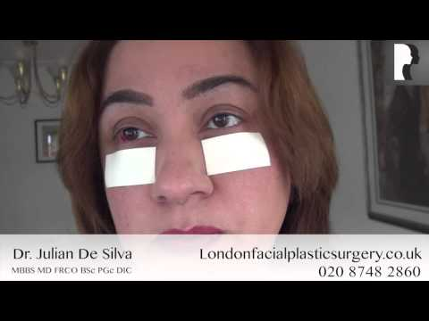 Watch Video: Blepharoplasty Video Diary: Day 5 After Eyelid Surgery & Recovery Progress
