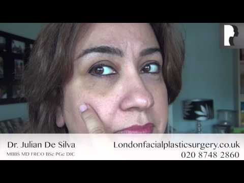 Watch Video: Blepharoplasty Video Diary: Day 7 After Eyelid Surgery & Recovery Process