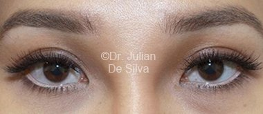 Eyelid Surgery (Blepharoplasty) After 83