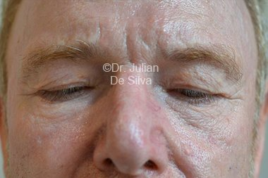 Eyelid Surgery (Blepharoplasty) Before 84
