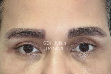 Eyelid Surgery (Blepharoplasty) After 86