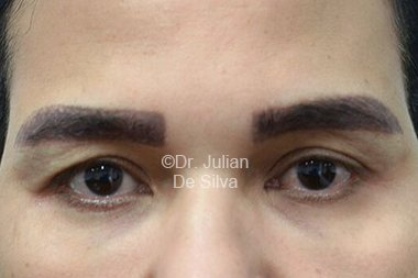 Eyelid Surgery (Blepharoplasty) Before 86