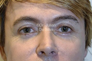 Eyelid Surgery (Blepharoplasty) After 87
