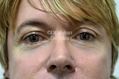 Eyelid Surgery (Blepharoplasty) Before 87