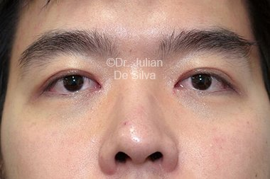 Eyelid Surgery (Blepharoplasty) After 90