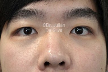 Eyelid Surgery (Blepharoplasty) Before 90