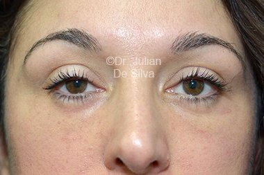 Eyelid Surgery (Blepharoplasty) After 92