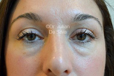 Eyelid Surgery (Blepharoplasty) Before 92