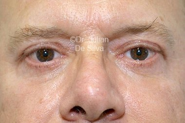 Eyelid Surgery (Blepharoplasty) After 94