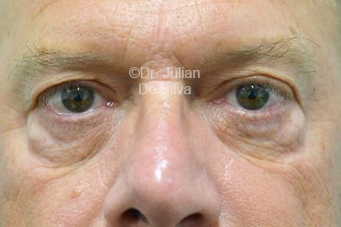 Eyelid Surgery (Blepharoplasty) Before 94