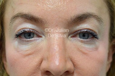 Eyelid Surgery (Blepharoplasty) Before 95