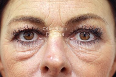 Eyelid Surgery (Blepharoplasty) Before 96