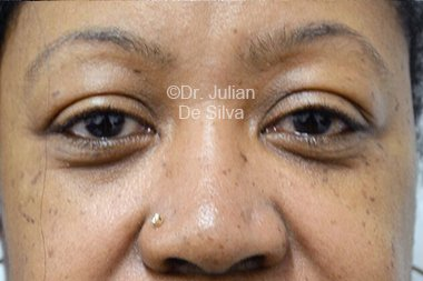 Eyelid Surgery (Blepharoplasty) Before 97