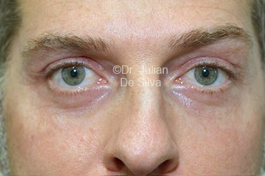 Eyelid Surgery (Blepharoplasty) After 98