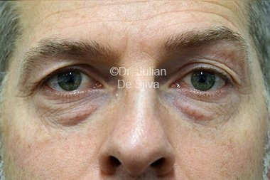 Eyelid Surgery (Blepharoplasty) Before 98
