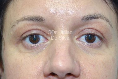 Eyelid Surgery (Blepharoplasty) After 100