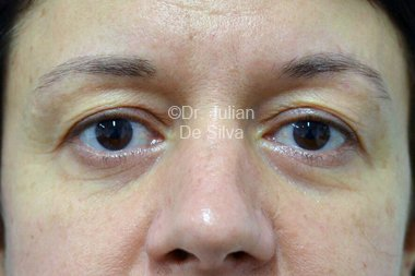 Eyelid Surgery (Blepharoplasty) Before 100