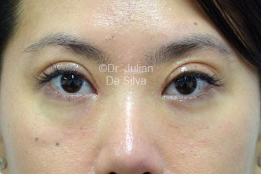 Eyelid Surgery (Blepharoplasty) After 101