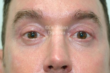 Eyelid Surgery (Blepharoplasty) After 102