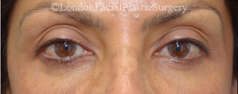 Eyelid Surgery (Blepharoplasty) After 34