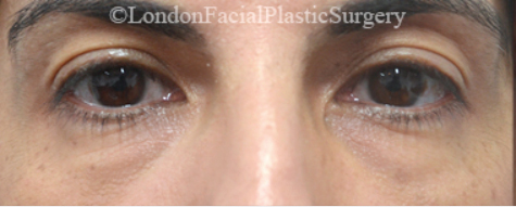 Eyelid Surgery (Blepharoplasty) Before 35