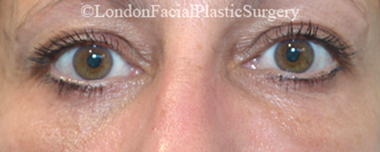 Eyelid Surgery (Blepharoplasty) After 36