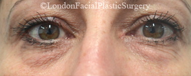 Eyelid Surgery (Blepharoplasty) Before 36