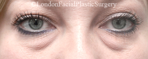 Eyelid Surgery (Blepharoplasty) Before 37