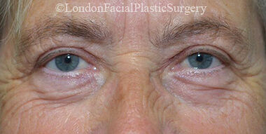 Eyelid Surgery (Blepharoplasty) After 41