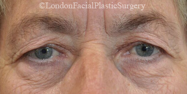 Eyelid Surgery (Blepharoplasty) Before 41