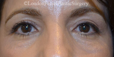 Eyelid Surgery (Blepharoplasty) After 42
