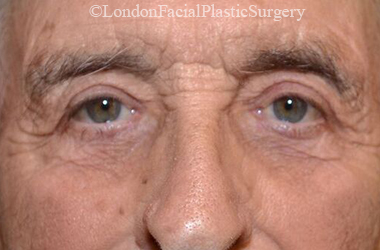 Eyelid Surgery (Blepharoplasty) After 43