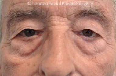 Eyelid Surgery (Blepharoplasty) Before 43