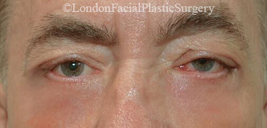 Eyelid Surgery (Blepharoplasty) After 44