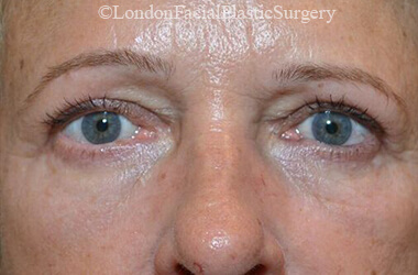 Eyelid Surgery (Blepharoplasty) After 45