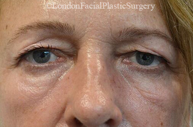 Eyelid Surgery (Blepharoplasty) Before 45