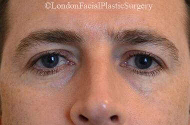 Eyelid Surgery (Blepharoplasty) Before 46