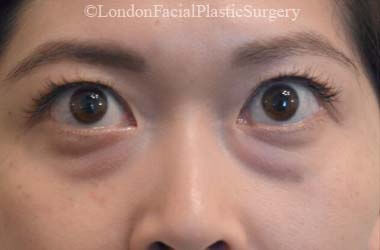 Eyelid Surgery (Blepharoplasty) Before 47