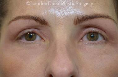 Eyelid Surgery (Blepharoplasty) After 48